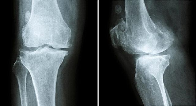 پنج اقدام برای داشتن استخوان هایی سالم