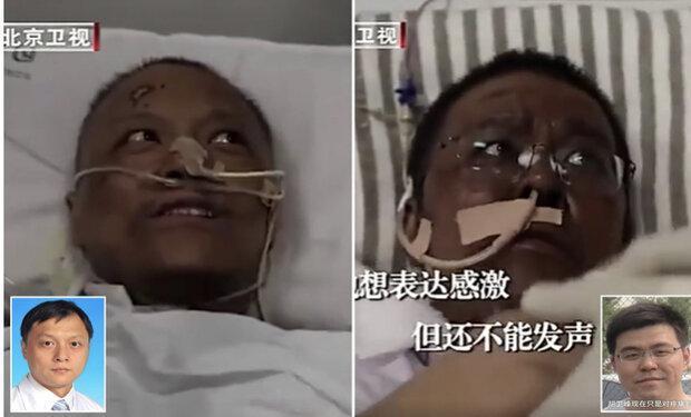 پوست 2 پزشک نجات یافته از کرونا تیره شد !