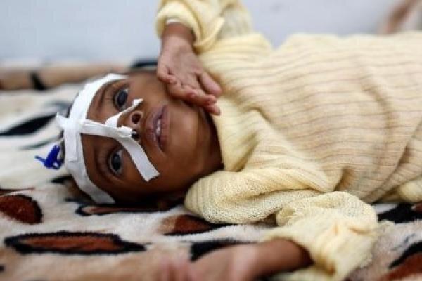تعداد بچه ها یمنی گرفتار سوءتغذیه به2میلیون و 400 هزار نفر می رسد